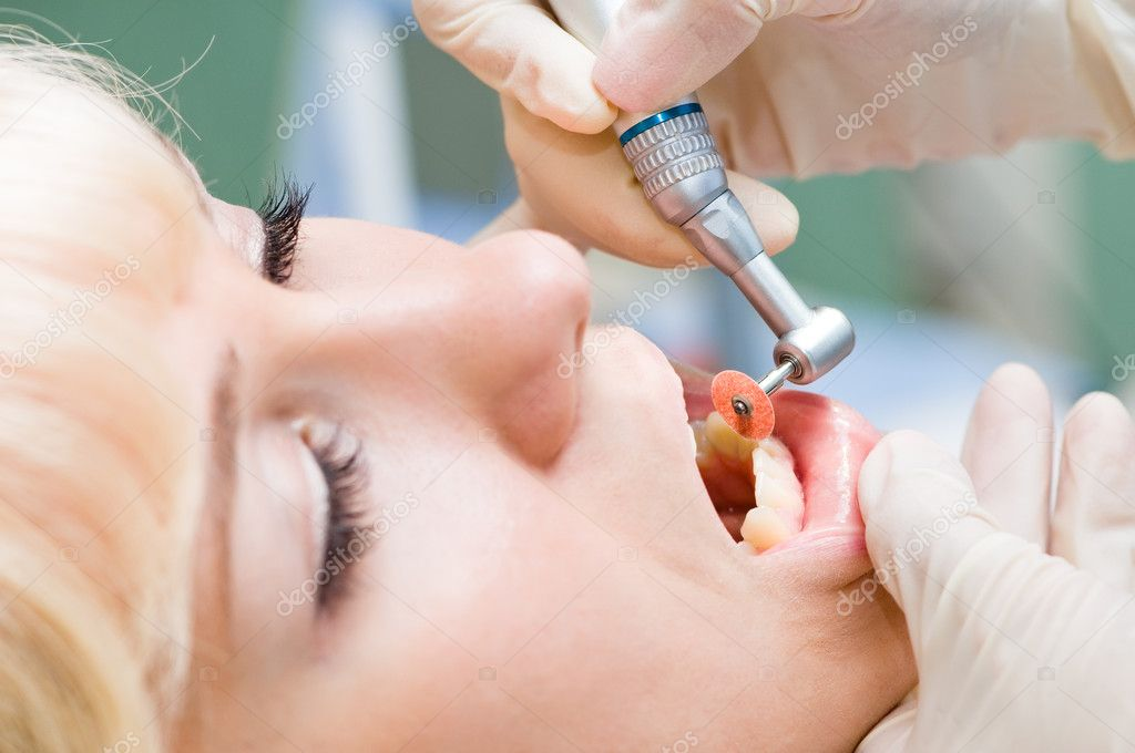 Close-up medical dentist procedure of teeth polishing — Stock Photo #5427745