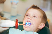 Dental filing of child tooth by ultraviolet light — Stock Photo