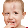 Wound child — Stock Photo #5606664