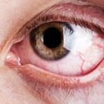 Blood capillary human eye — Stock Photo