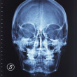 Skull xray — Stock Photo #6277108