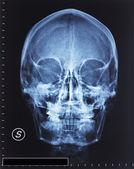 Skull xray — Stock Photo