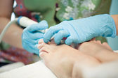Peeling feet pedicure procedure — Stock Photo