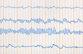 Electrocardiogram ecg — Stock Photo