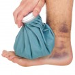 Icing a sprained ankle — Stock Photo
