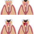 Caries stages - Stock Vector