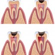 Stock Vector: Caries stages