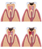 Caries stages — Stock Vector