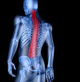 人与背痛的骨架 — 图库照片