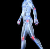 Skeleton of the man with the centres of pains of joints — Stock Photo