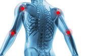 Scheletro di un uomo con i centri di dolori delle articolazioni — Foto Stock