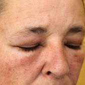 Swollen eyes and face for allergy — Stok fotoğraf