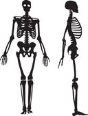 Silhouette of a human skeleton. — Vetor de Stock