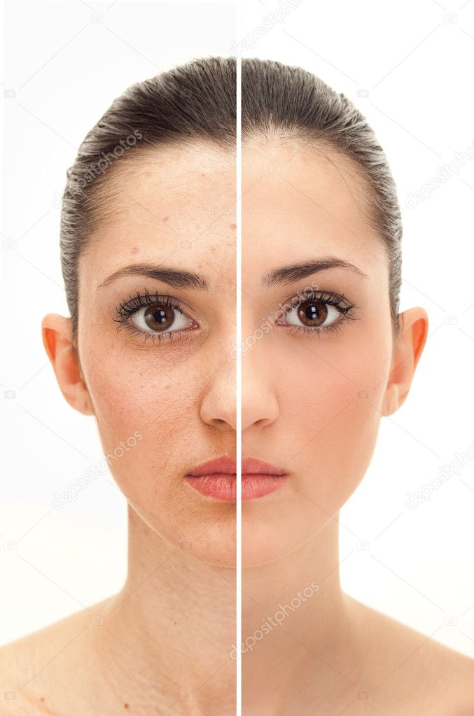 Woman's face, beauty concept before and after contrast,  power of retouch  Stock Photo #5614329