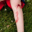 Blood on leg — Stock Photo