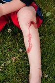 Blood on leg — Stock Photo