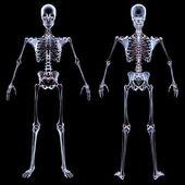 Skeleton — Stock Photo
