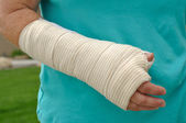 Injured Hand and Arm — Stock Photo