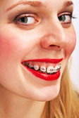 Woman with brackets — Stockfoto