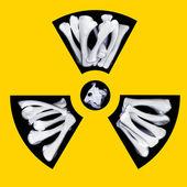 Radioactive bones — Stock Photo