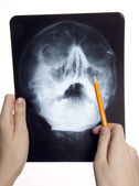 Roentgen photo of skull — Stock Photo