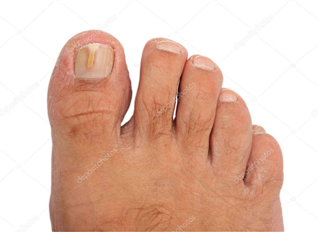 Запущенный грибок на больших пальцах ног лечение