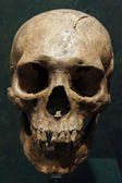 Människans kranium — Stockfoto