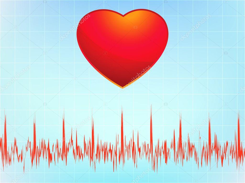 heart attack ecg. Heart attack electrocardiogram-ecg. EPS 8