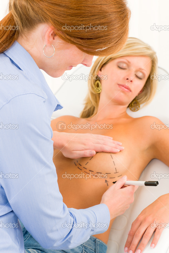 Plastic surgery female doctor draw line patient breast augmentation implant — Stock Photo #6288026