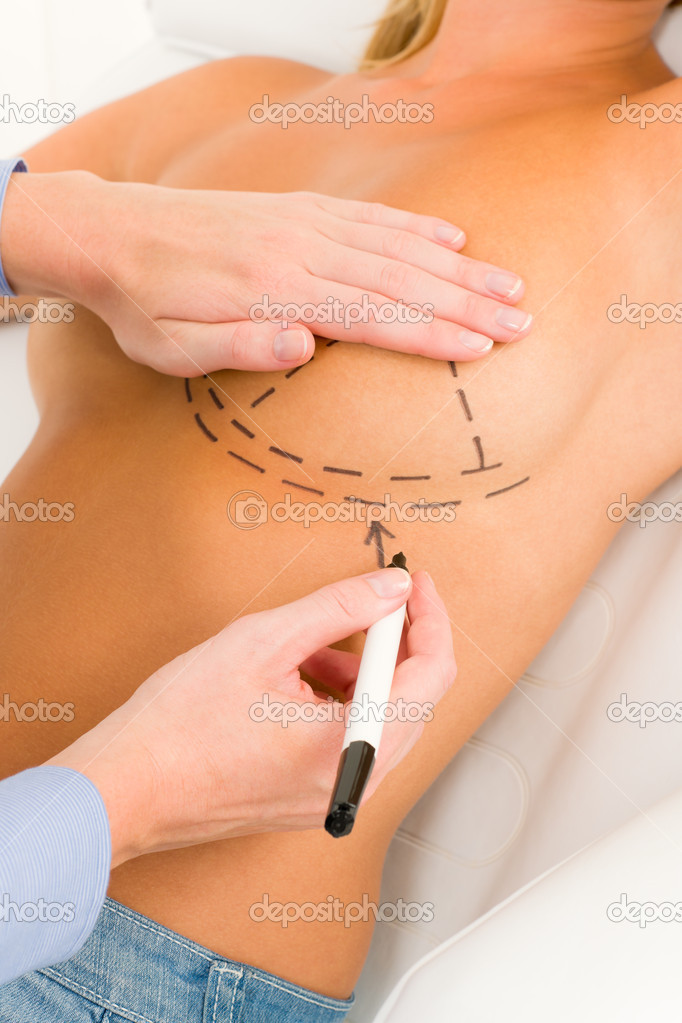 Plastic surgery doctor draw line on patient breast augmentation implant — Stock Photo #6288032