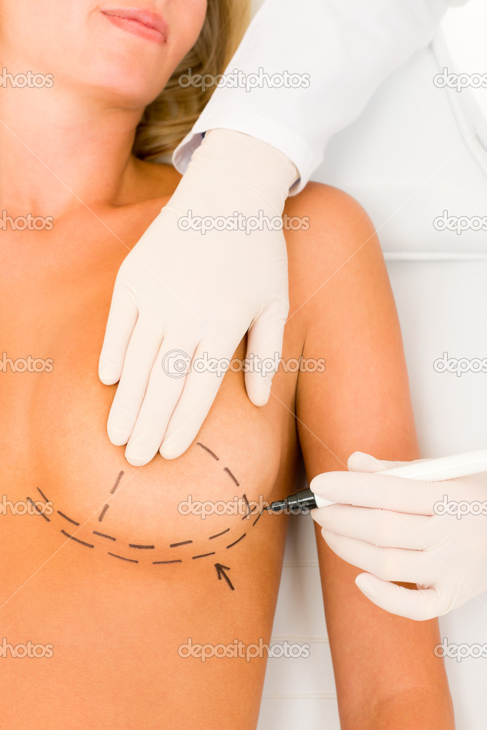 Plastic surgery doctor draw line on patient breast augmentation implant  Stock Photo #6288042