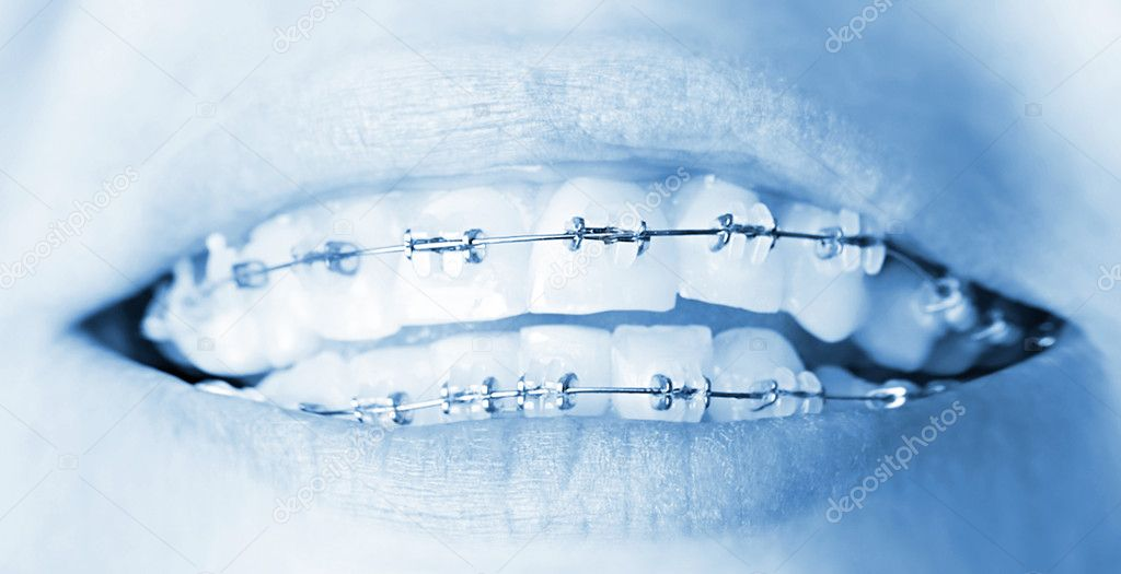 Teeth with braces, beautiful female smile, dental care concept — Stock Photo #5789789