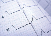 Cardiograph — Stock Photo