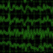 Brain wave on encephalogram EEG — Stock Photo