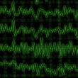Stock Photo: Brain wave on encephalogram EEG
