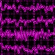 Brain wave on encephalogram EEG - Photo
