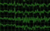 Brain wave on encephalogram EEG — Stock Photo