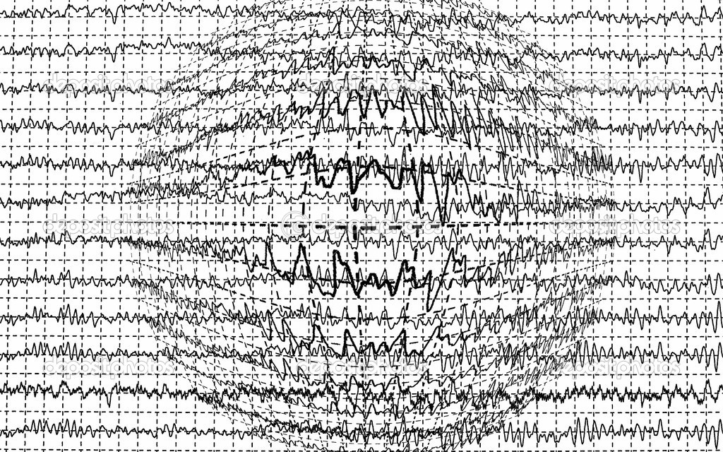 Background Brain Waves Brain Wave Encephalogramme Eeg