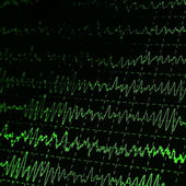 Green graph brain wave EEG — Stock Photo