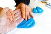 Hand physiotherapy to recover a broken finder — Stock Photo