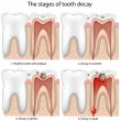 Tooth decay — Stockvectorbeeld