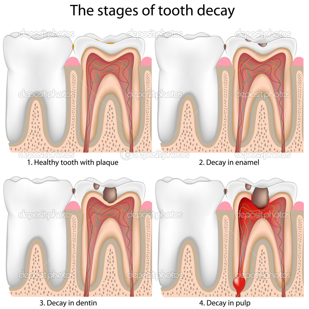 Stages of Tooth decay, eps8 — Stock Vector #5525377