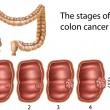 Colon cancer — Image vectorielle