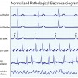 Normal and diseased ecg collection — Imagen vectorial