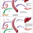 Type 2 diabetes — Image vectorielle