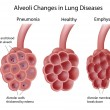 Lung diseases — Image vectorielle
