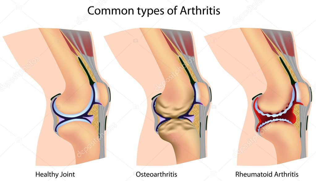 Knee with common types of arthritis, eps8 — Grafika wektorowa #5555233