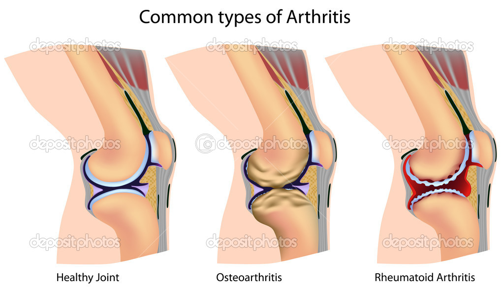 Knee with common types of arthritis, eps8 — Vettoriali Stock  #5555233