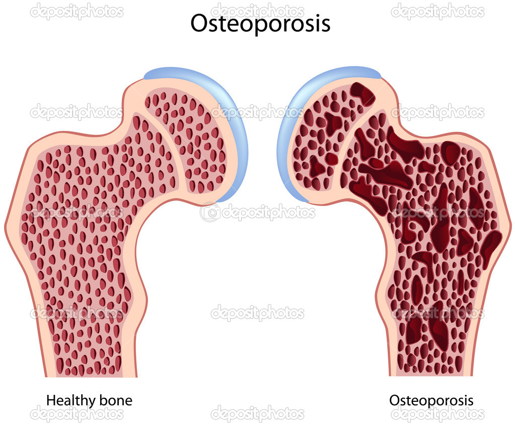 Femur (hip)  with and without Osteoporosis, eps8 — Stock Vector #5555894