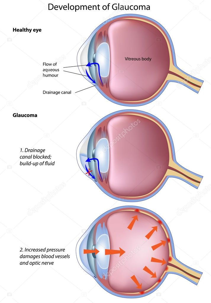 Stages of glaucoma, a common eye disease, eps8 — Stock Vector #5689600